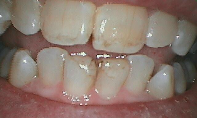 Patient before chipped teeth were restored with porcelain veneers.